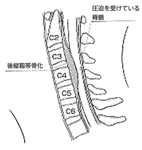(図3)後縦靱帯骨化のシェーマ