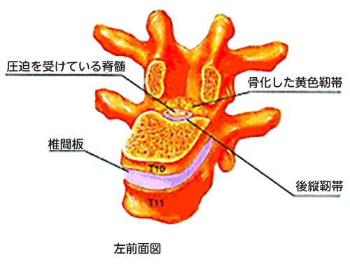 (図2)胸椎黄色靱帯骨化のシェーマ
