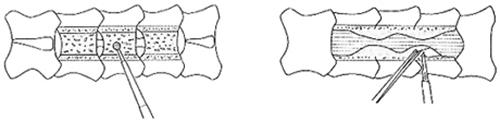 (図3)手術法のシェーマ