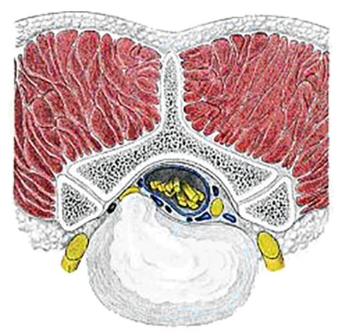 (図3)腰椎椎間板ヘルニアのシェーマ
