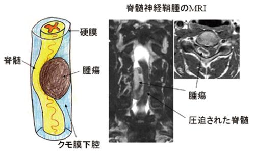 (図4)脊髄硬膜内髄外腫瘍