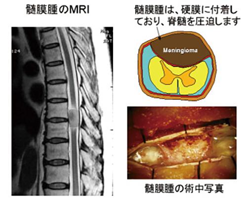 (図6)髄膜腫の画像と術中所見