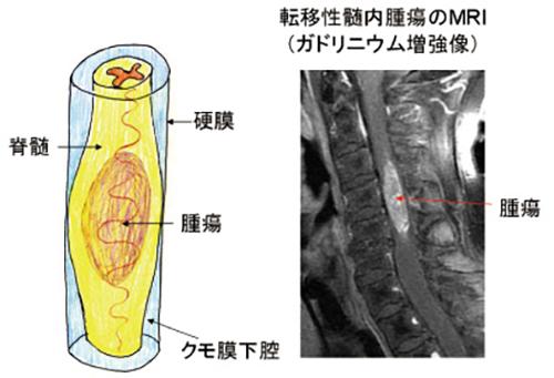 (図7)脊髄髄内腫瘍