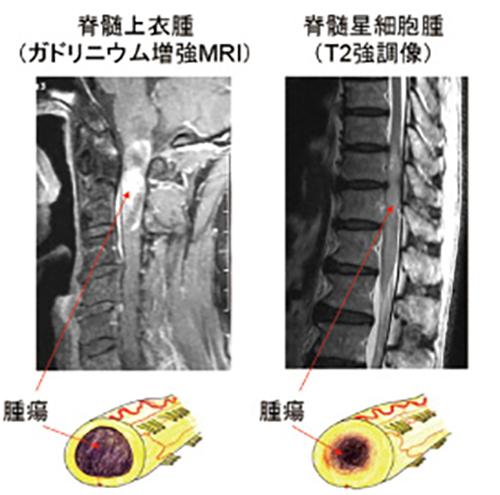 (図8)脊髄神経膠腫の画像