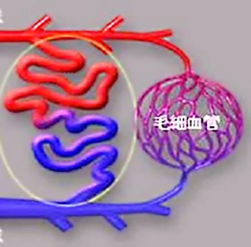 (図1)黄枠で囲んだ部分が動静脈奇形で、動脈(赤)と静脈(青)のつながっている部分がシャント部