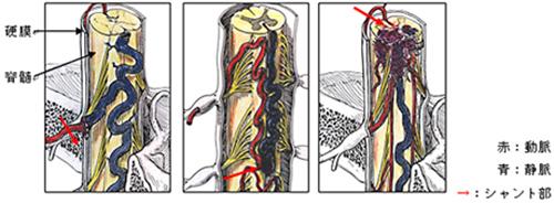 (図3)脊髄動静脈奇形のシェーマ
