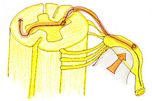 (図2)解説:末梢型神経因性疼痛の一例:脊髄神経節が圧迫を受けると疼痛が発生する。代表例は椎間板ヘルニアである。