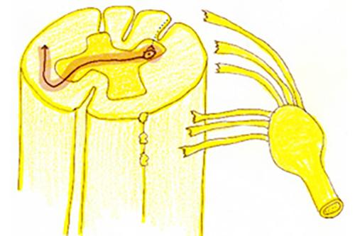 (図4)解説:中枢型神経因性疼痛の一例:脊髄神経が脊髄から引き抜けて一部損傷された後角二次ニューロンが異常活動をおこして幻の痛み感覚を脳に伝えている状態。脊髄神経引き抜き損傷。