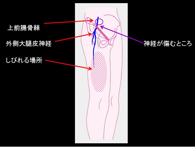 付け根 外側 痛み 足 の